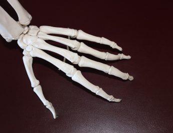 infiammazione nell' artrite reumatoide