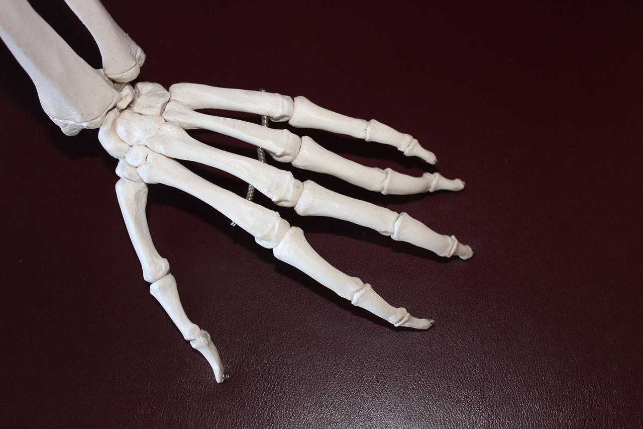 infiammazione artrite reumatoide