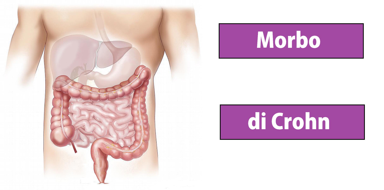 Morbo di Crohn - Malattia di Crohn - tipi di malattia di Crohn