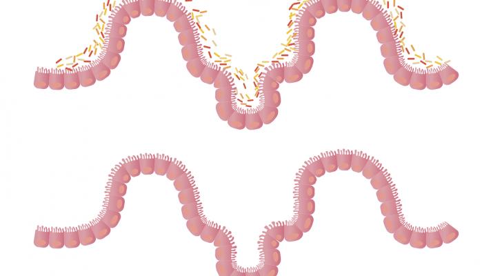 microbi intestinali - microbiota